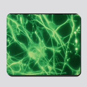 Fluorescence LM of brain tumour culture Mousepad