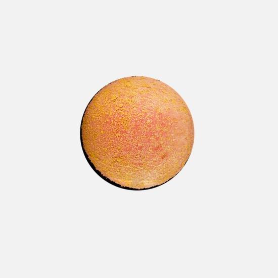 Coloured SEM of a fertilized human egg Mini Button