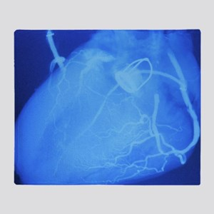 Artificial heart valve Throw Blanket