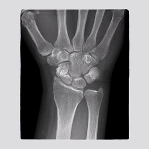 Fractured wrist, X-ray Throw Blanket
