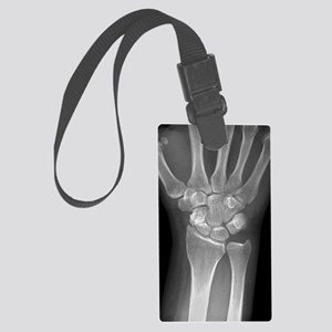 Fractured wrist, X-ray Large Luggage Tag