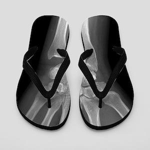 Fractured wrist, X-ray Flip Flops