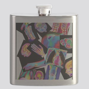 Assortment of coloured X-rays and body scans Flask