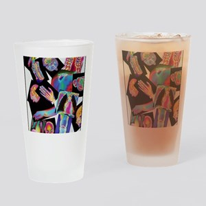 Assortment of coloured X-rays and b Drinking Glass