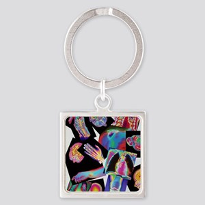 Assortment of coloured X-rays and  Square Keychain