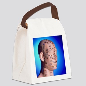 Acupuncture chart on a cast of a  Canvas Lunch Bag
