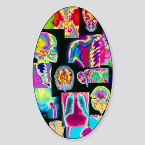Assortment of coloured X-rays and b Sticker (Oval)
