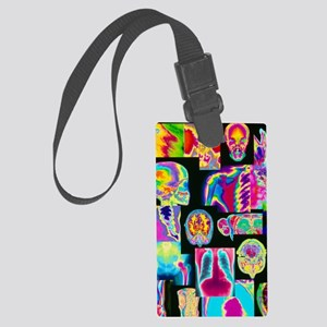 Assortment of coloured X-rays an Large Luggage Tag