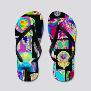 Assortment of coloured X-rays and body  Flip Flops