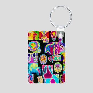 Assortment of coloured X-r Aluminum Photo Keychain