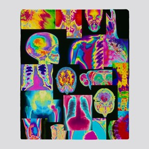 Assortment of coloured X-rays and bo Throw Blanket