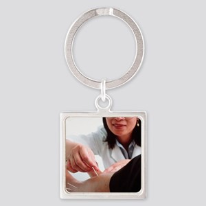 Acupuncture Square Keychain