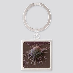 Cervical cancer cell, SEM Square Keychain