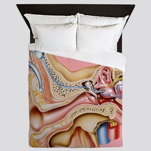 Cochlear implant, artwork Queen Duvet