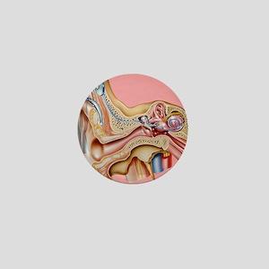 Cochlear implant, artwork Mini Button