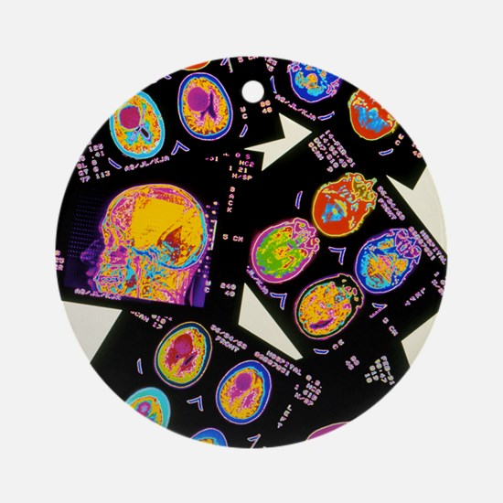Coloured CT scans of the brain on a Round Ornament