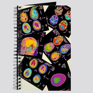 Coloured CT scans of the brain on a light  Journal