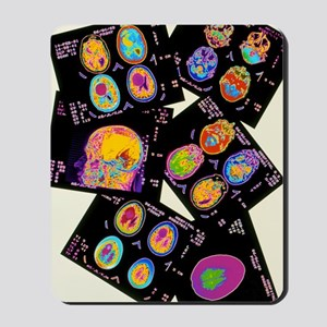 Coloured CT scans of the brain on a ligh Mousepad