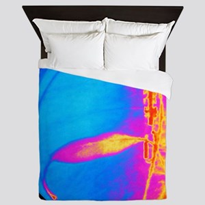 Coloured X-ray of cardiac angioplasty  Queen Duvet
