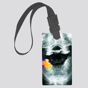 Coloured X-ray of impacted wisdo Large Luggage Tag