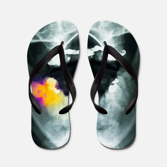 Coloured X-ray of impacted wisdom tooth Flip Flops