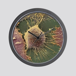 Cervical cancer cell, SEM Wall Clock