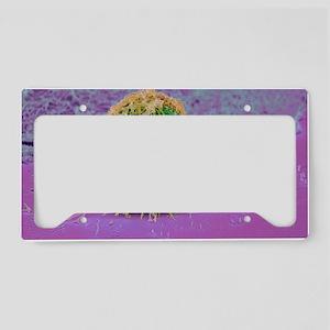 Cervical cancer cell, SEM License Plate Holder