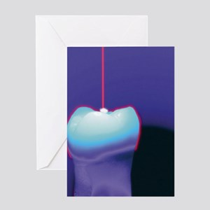 Computer graphic of a dental laser h Greeting Card