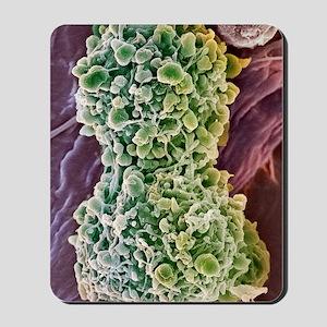 Cervical cancer cells dividing, SEM Mousepad
