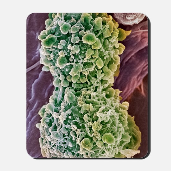 Cervical cancer cells dividing, SEM Mousepad