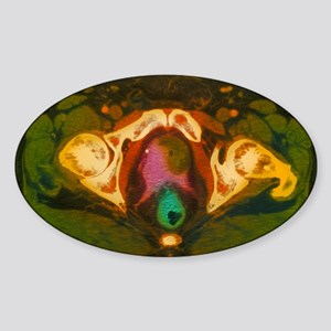 Coloured MRI scan showing prostate  Sticker (Oval)