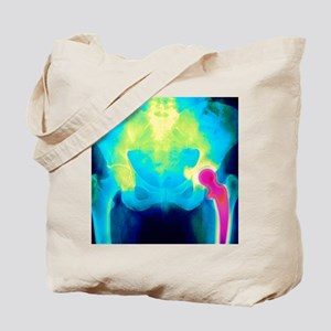Coloured X-ray of an artificial hip joint Tote Bag