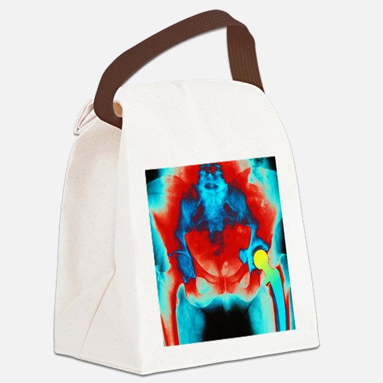 Coloured X-ray of an artificial h Canvas Lunch Bag