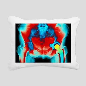 Coloured X-ray of an art Rectangular Canvas Pillow