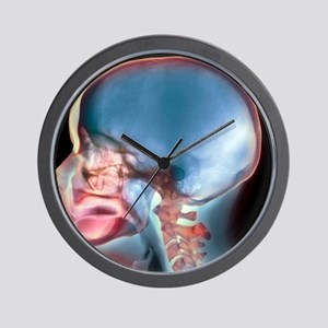 Complete loss of teeth, X-ray Wall Clock