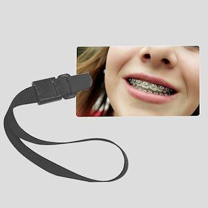 Dental braces Large Luggage Tag
