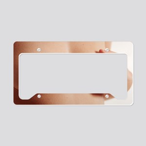 Cosmetic surgery markings License Plate Holder
