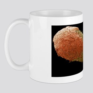 Cotton bud with ear wax, SEM Mug