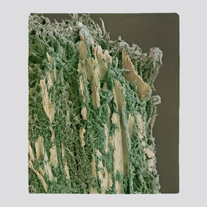 Dental plaque, SEM Throw Blanket