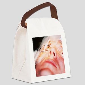Eye surgery Canvas Lunch Bag