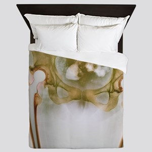 Double hip replacement, X-ray Queen Duvet