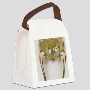 Double hip replacement, X-ray Canvas Lunch Bag