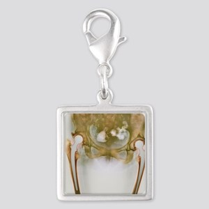 Double hip replacement, X-ray Silver Square Charm