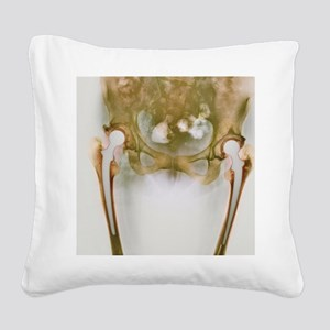 Double hip replacement, X-ray Square Canvas Pillow