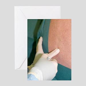 Epidural anaesthetic Greeting Card