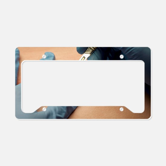 First incision License Plate Holder