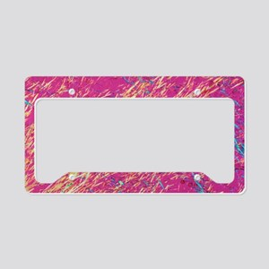 Gout crystals License Plate Holder
