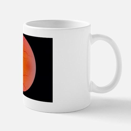 Glaucoma Mug