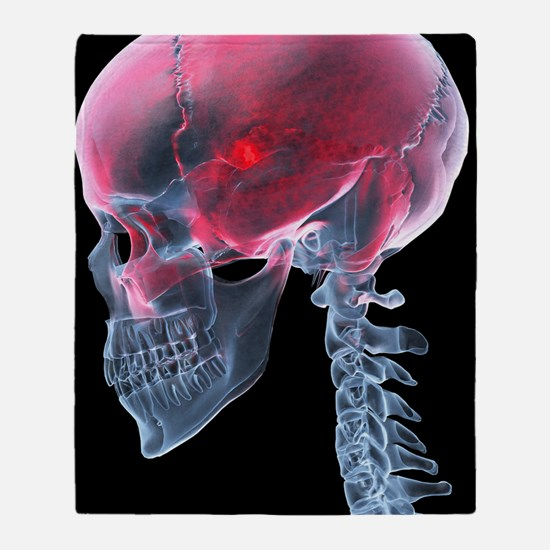 Headache, X-ray artwork Throw Blanket