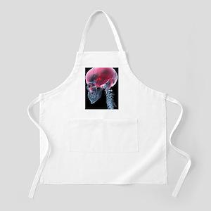 Headache, X-ray artwork Apron